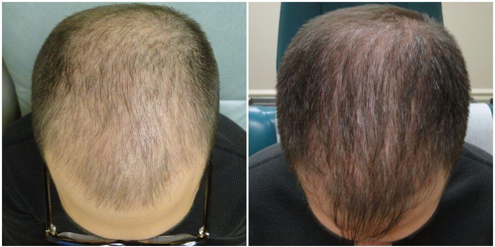 prp behandling hår