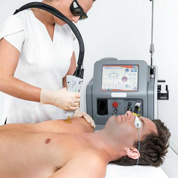laser til behandling